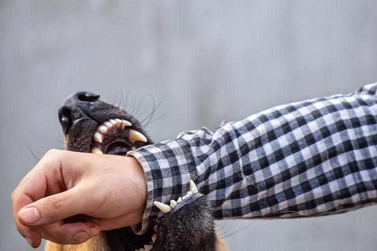 Dog Bite on hand