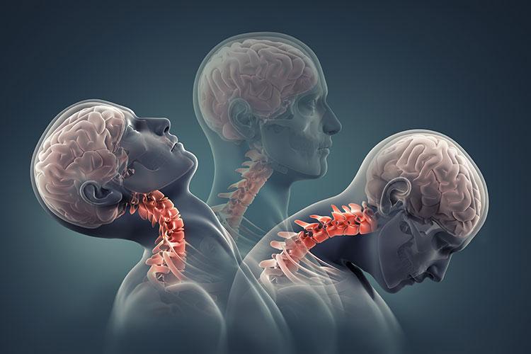 traumatic neck injury
